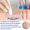 Blue Light Therapy Pen Massage Relax