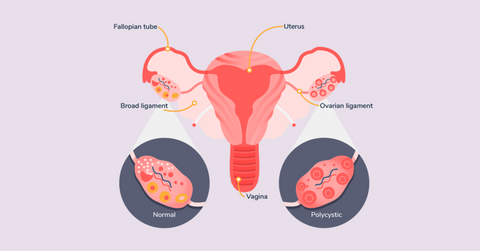 PCOS symptoms the oh collective shanghai female wellness female health