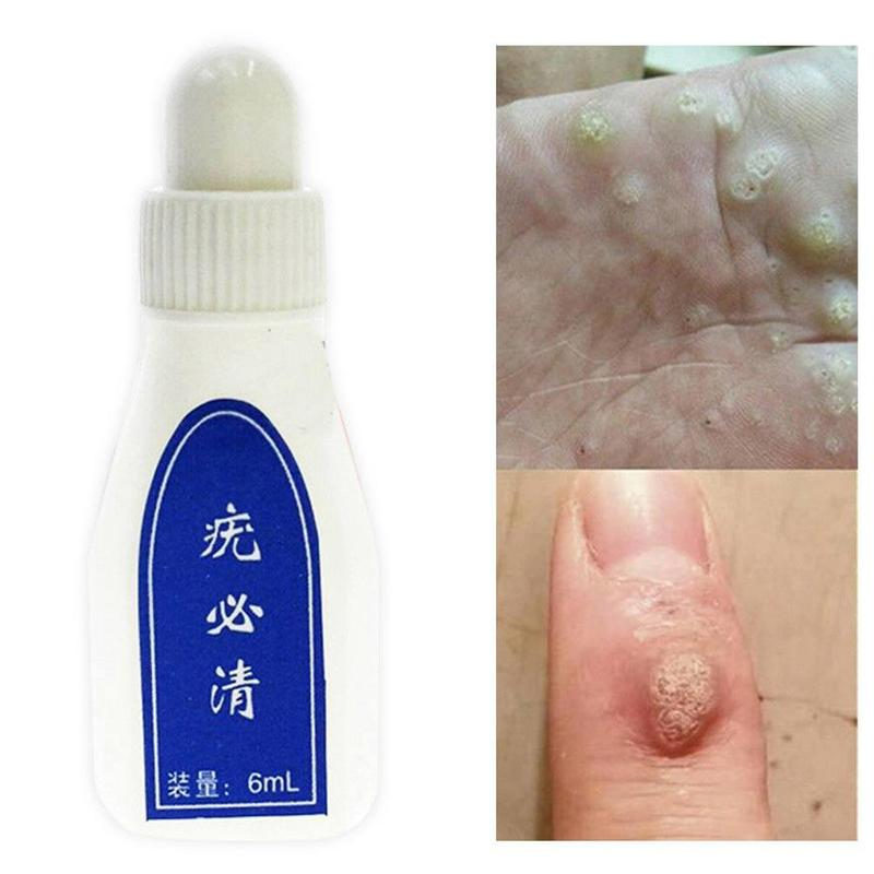 Chinese Medicine Warts Ointment 6ml Treatment Removing Foot Corn Skin Tag Plantar Wart Plaster Body Care Medical Liquid Balm