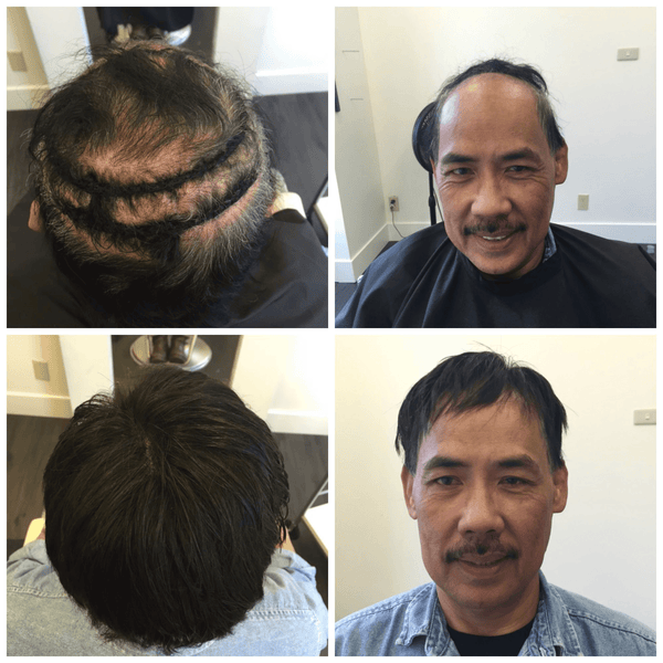 Best Mens Hair Pieces company