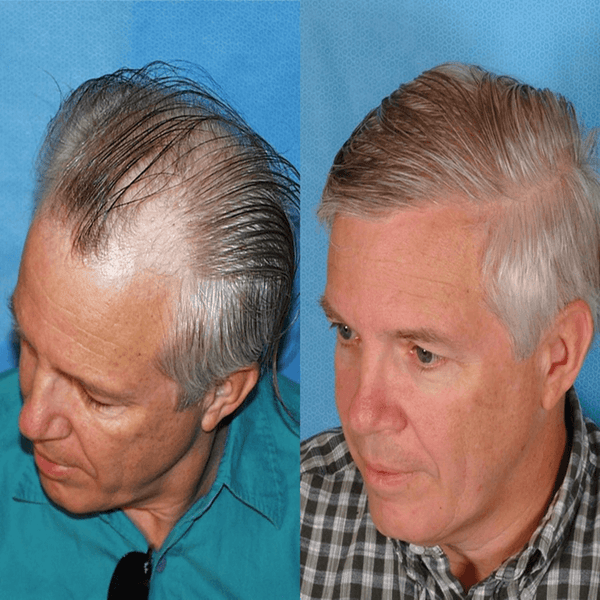 Men's Hair Replacement Systems manufacturers