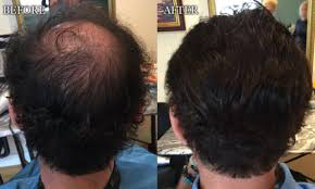 hair replacement system