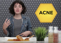 ACNE SOLUTION - Natural Propolis Acne Treatment - Hey Honey Skin Care