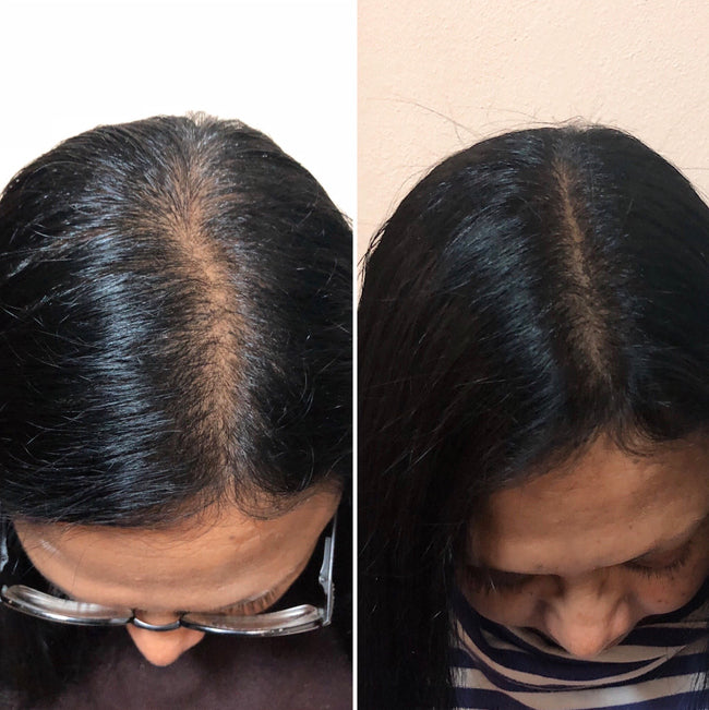 AEDE Hair Activist | Real Results | Hair Growth Supplement | Australia