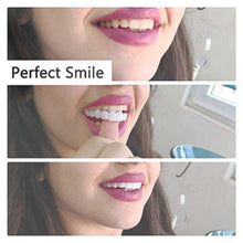 Load image into Gallery viewer, Magic Smile Teeth Brace