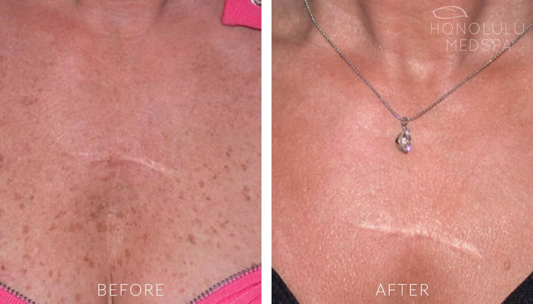 IPL / AFT FOR BROWN SPOTS - Honolulu MedSpa