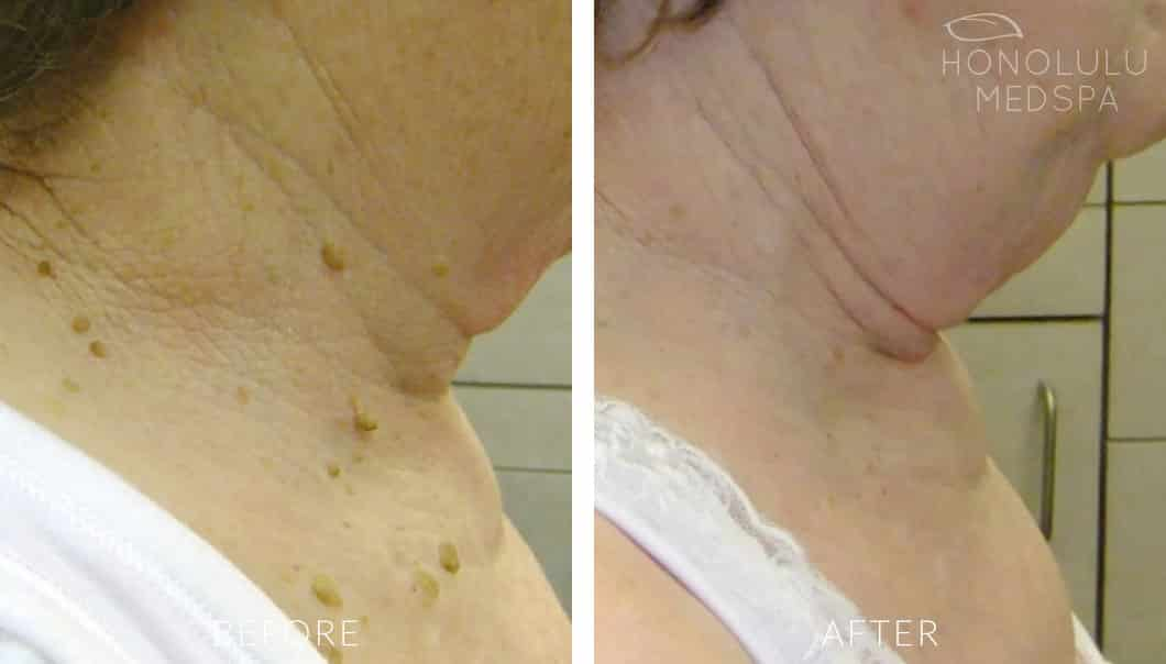 ELECTRODESSICATION - Honolulu MedSpa