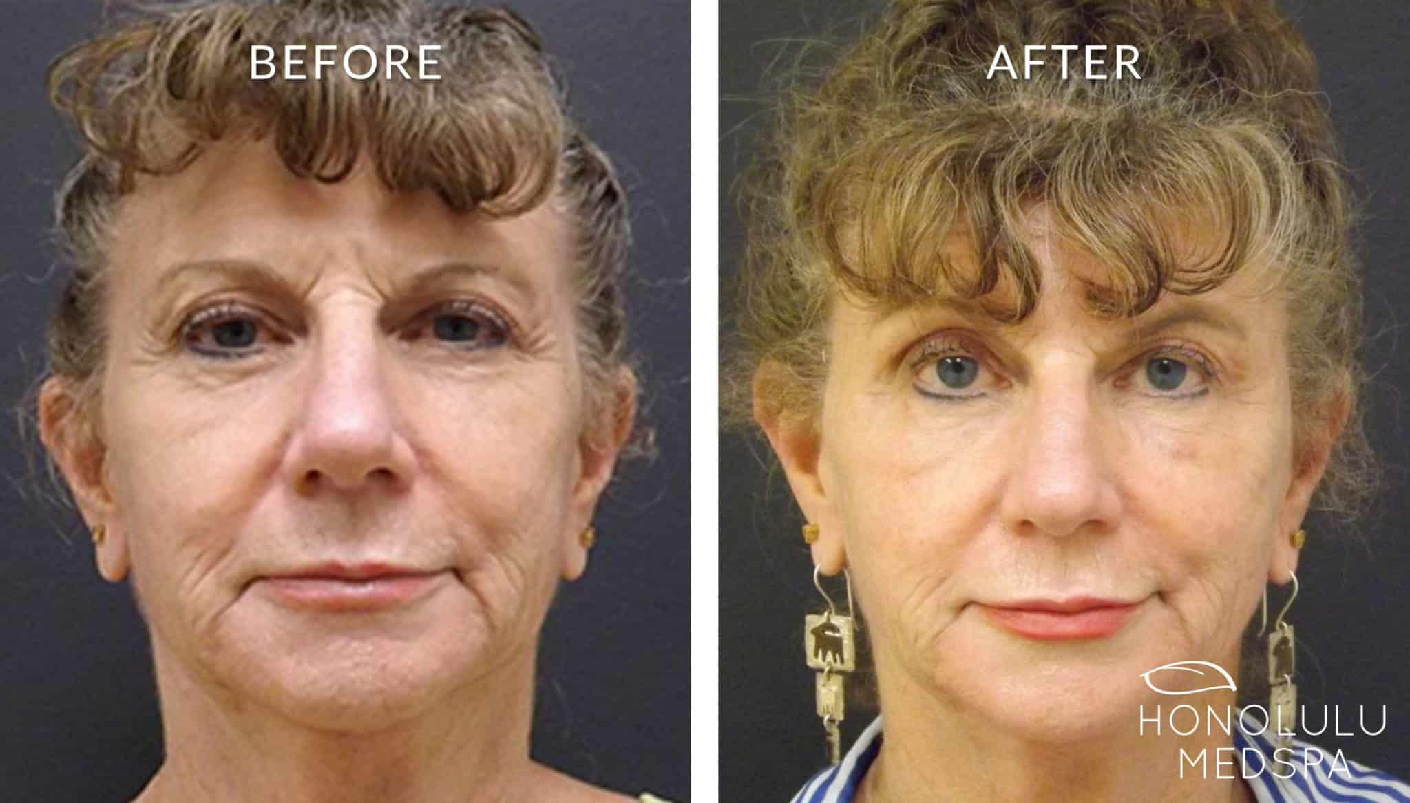 PRP FACELIFT - Honolulu MedSpa