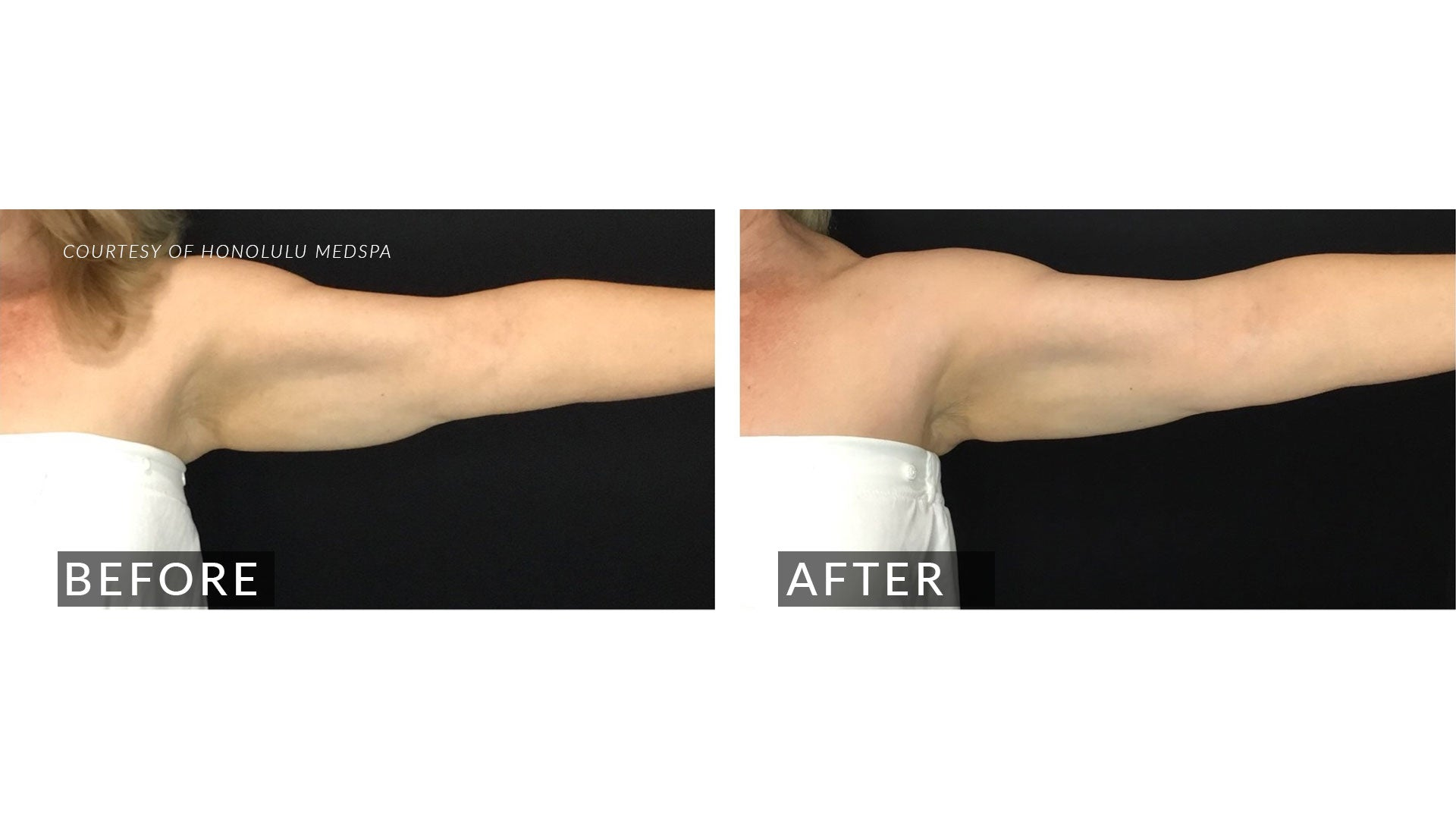 COOLSCULPTING PLUS+ - Honolulu MedSpa