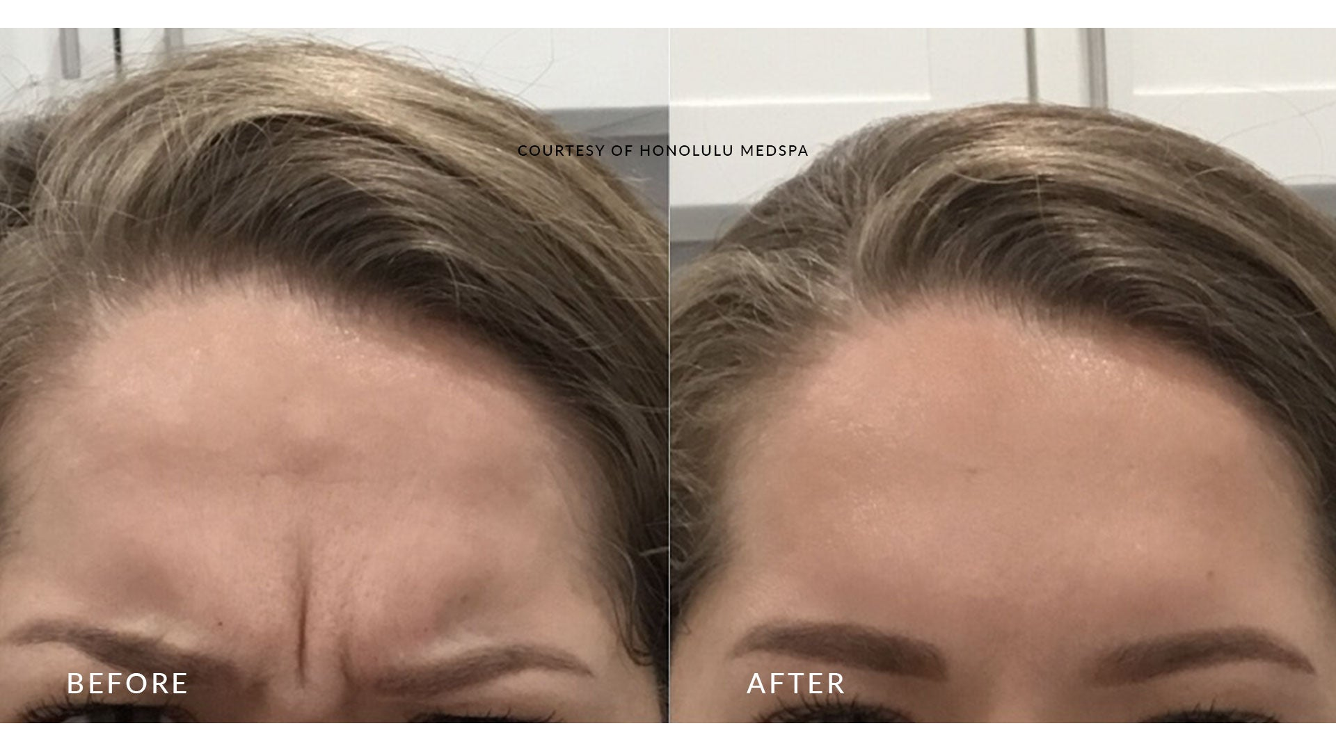 BOTOX® FOR FINE LINES AND WRINKLES - Honolulu MedSpa