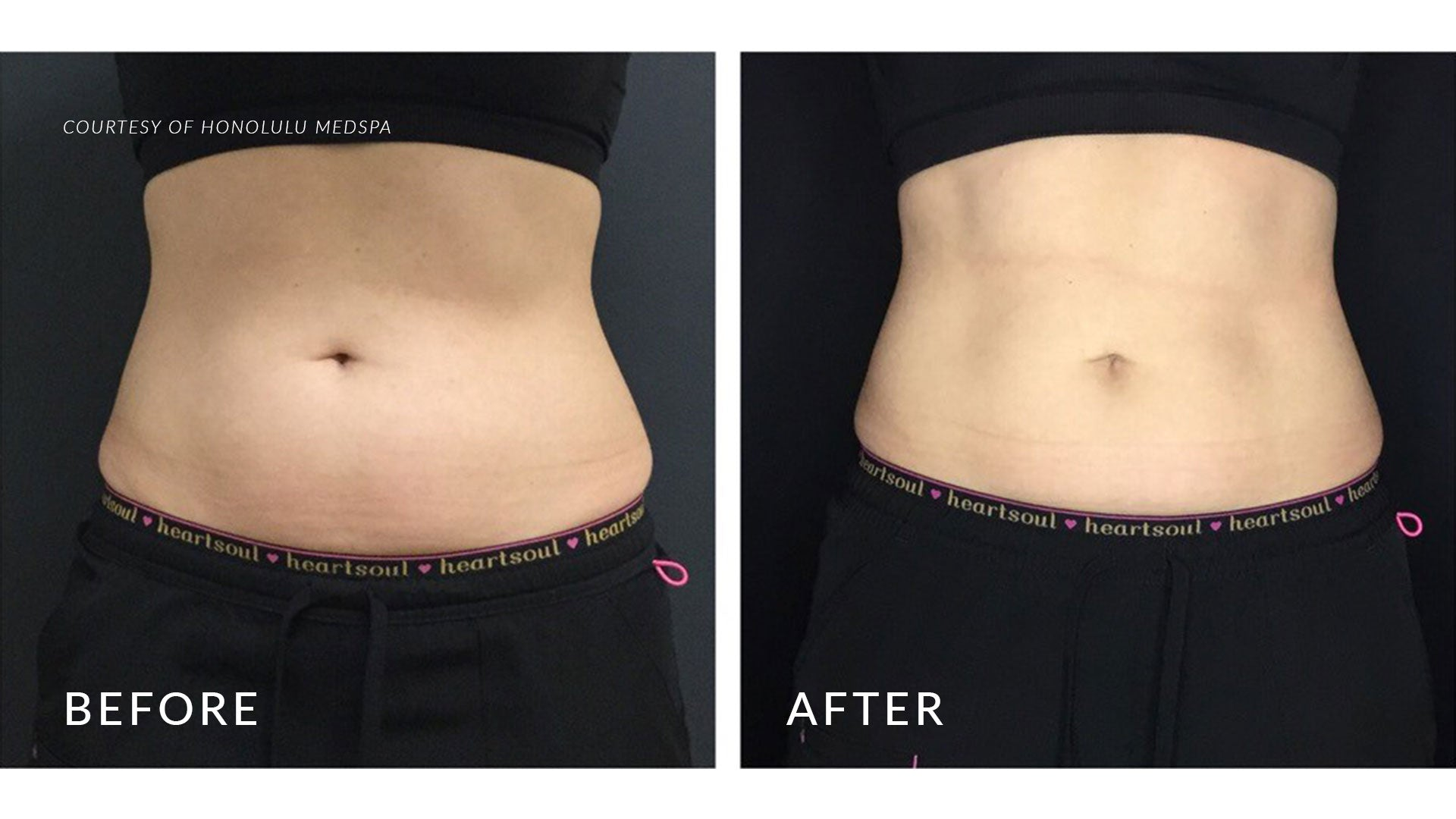 COOLSCULPTING® PLUS+ - Honolulu MedSpa
