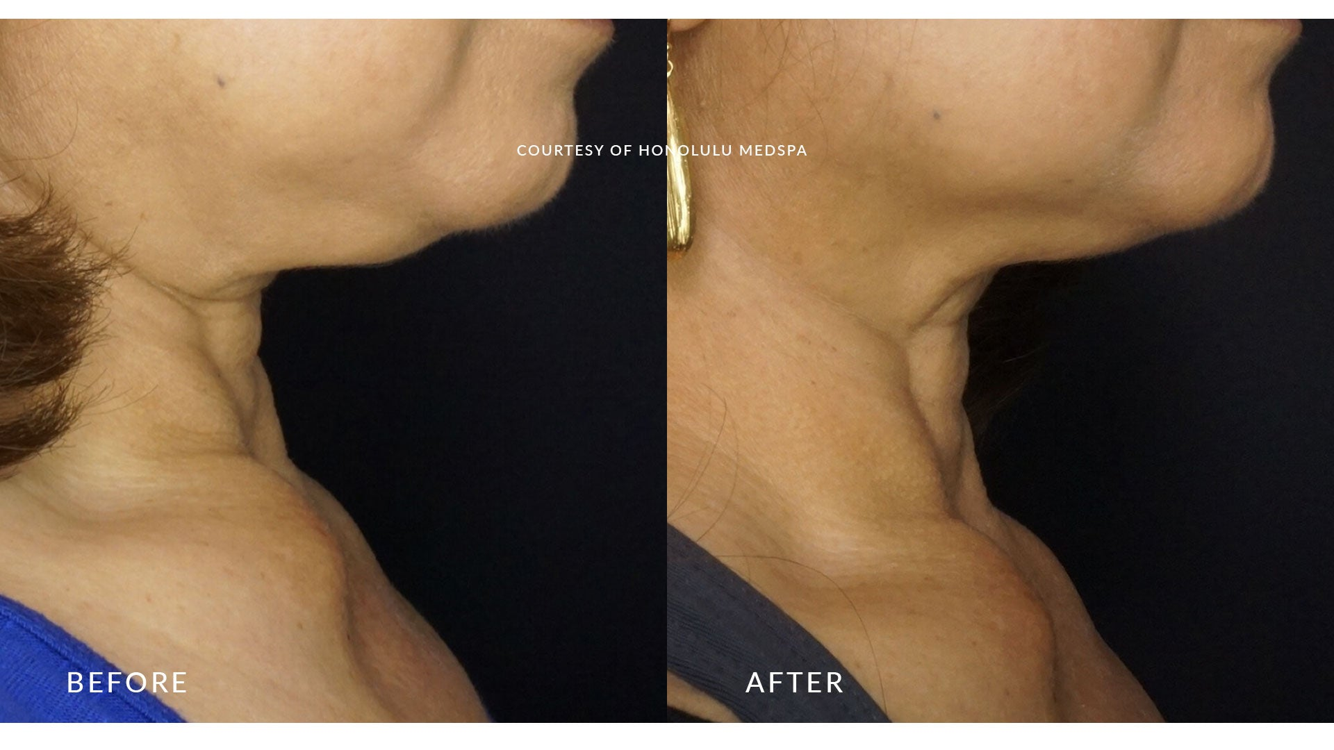 FOTONA 4D LASER FACIAL REJUVENATION - Honolulu MedSpa
