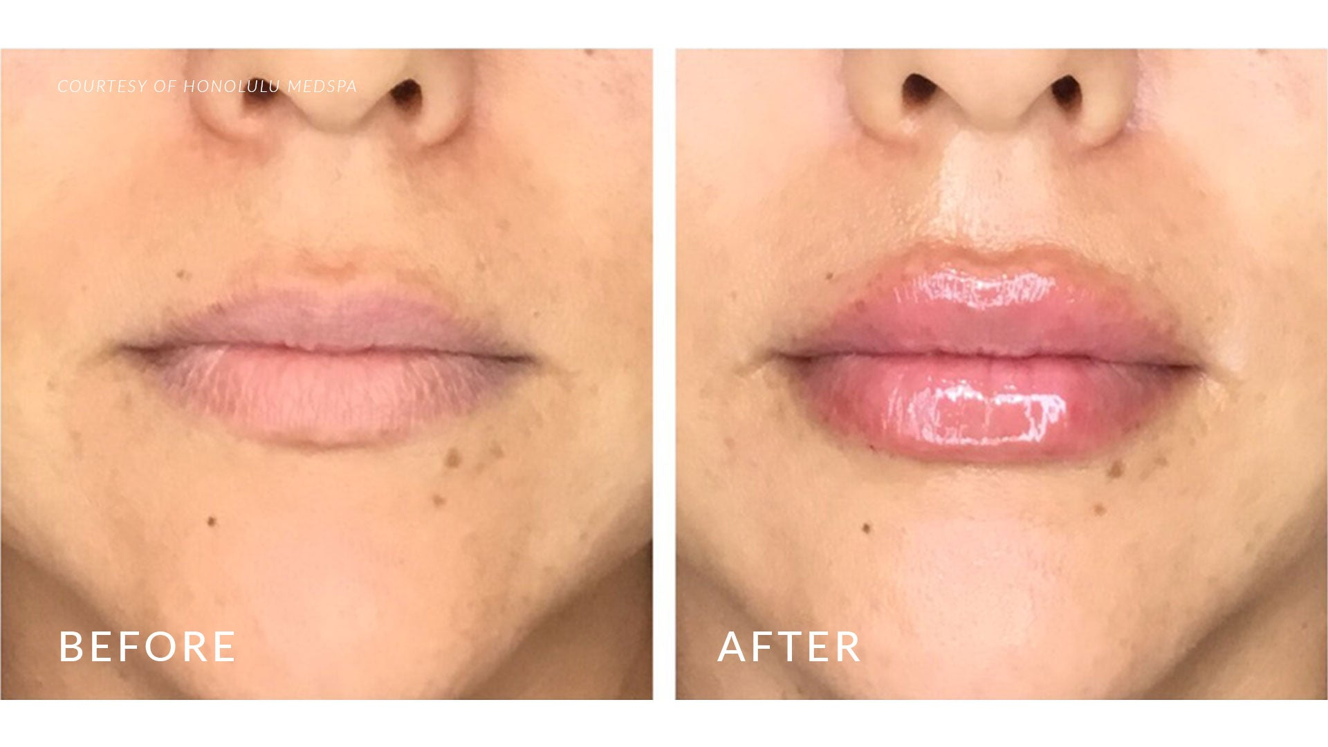 JUVÉDERM® HA FILLERS - Honolulu MedSpa