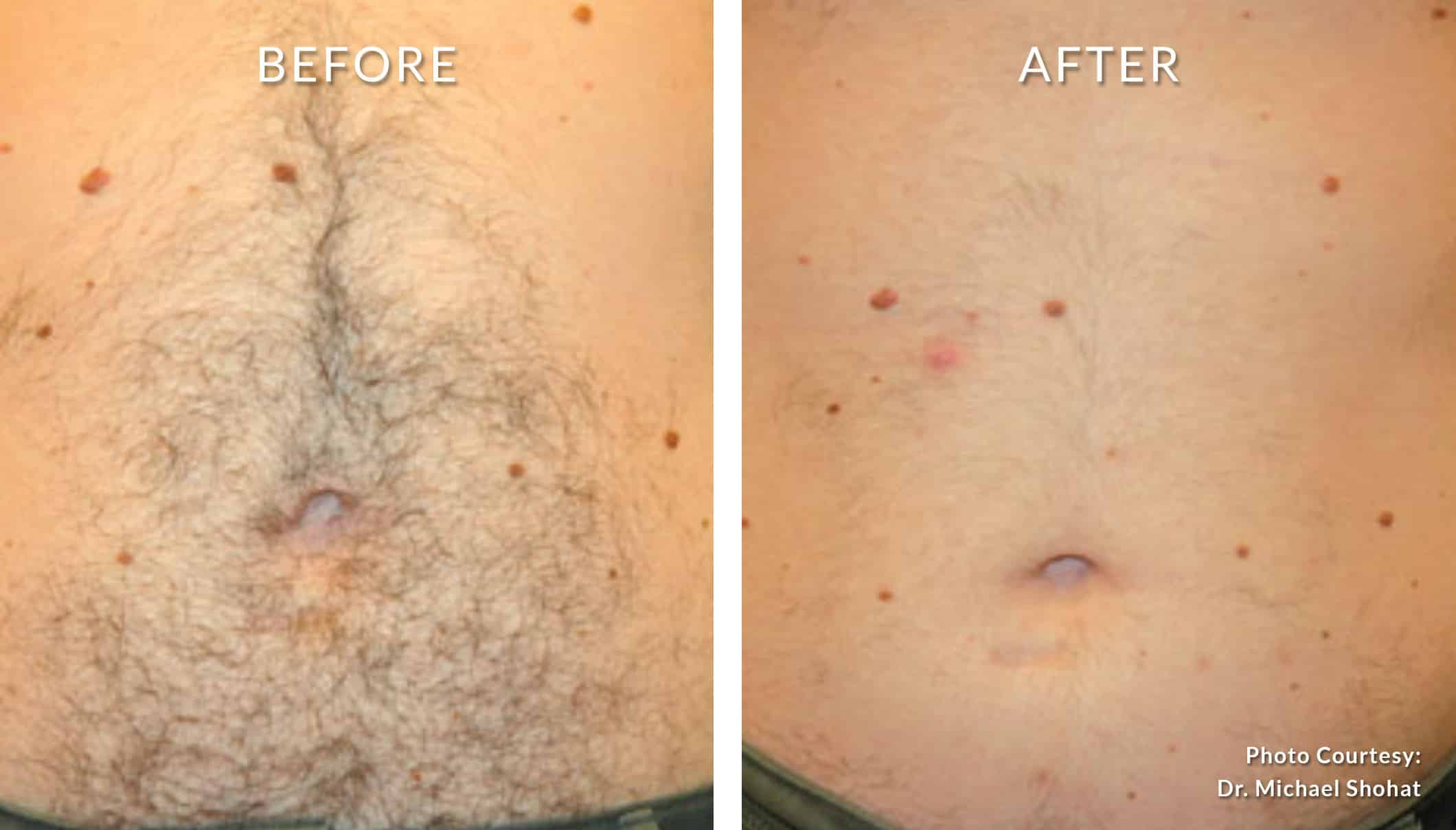 LASER HAIR REMOVAL - Honolulu MedSpa