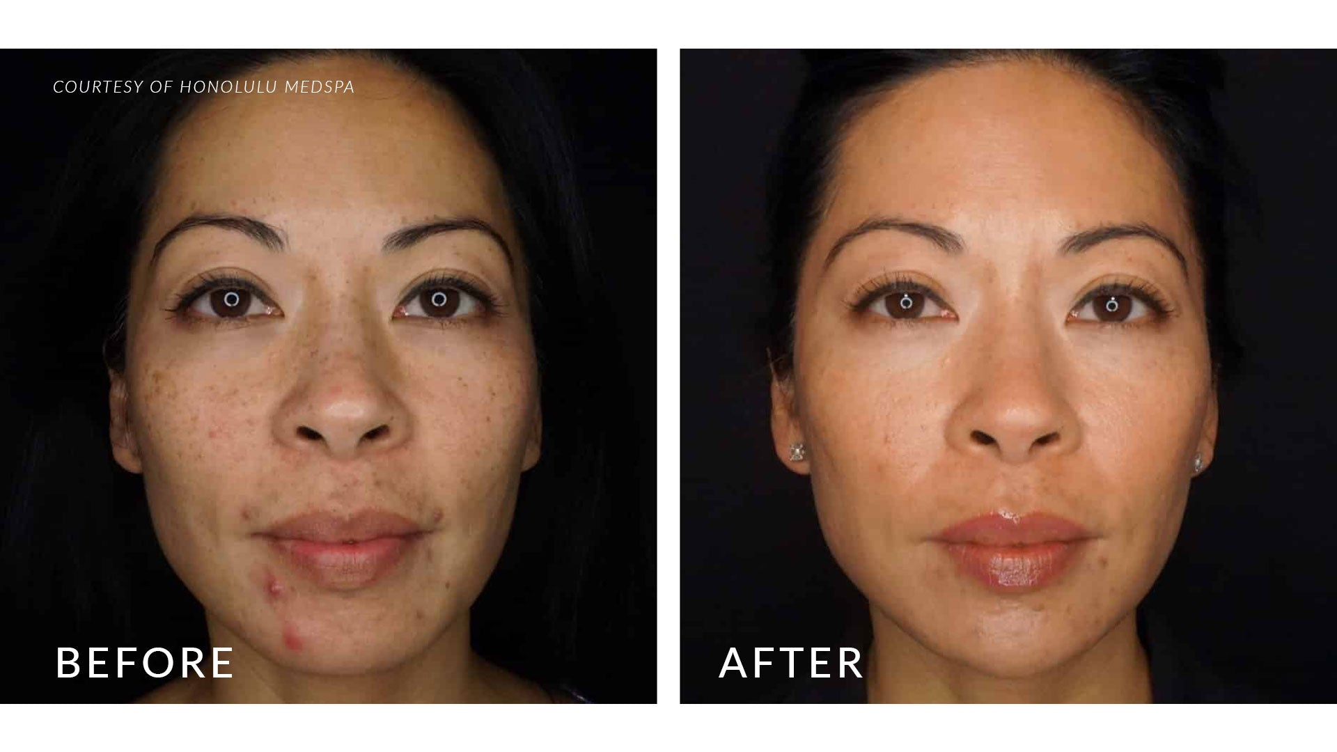 MEDICAL GRADE FACIALS - Honolulu MedSpa
