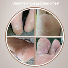 Load image into Gallery viewer, Electric Foot Callus Remover