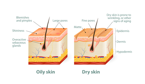 understanding oily and dry skin