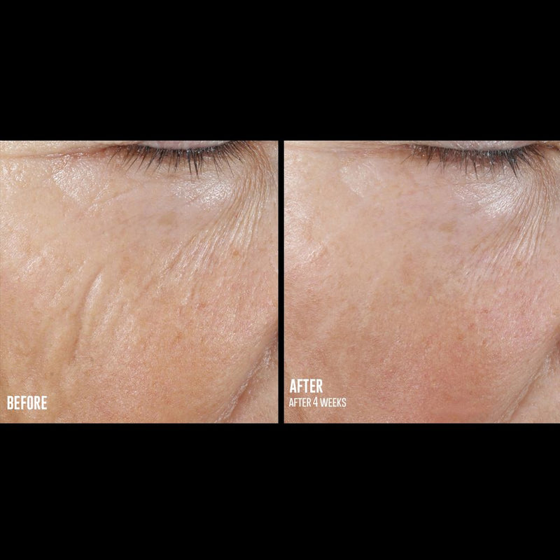 SkinBetter Science : Interfuse LINES intensive filler-grade hyaluronic acid for lines smoothening