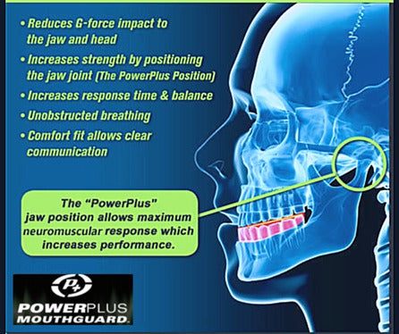 PowerPlus Elite Mouthguard