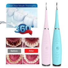 Load image into Gallery viewer, Ultrasonic tooth cleaner can effectively separate dental plaque, dental calculus, and stains, removes hard tartar easily from the teeth preventing gum disease.