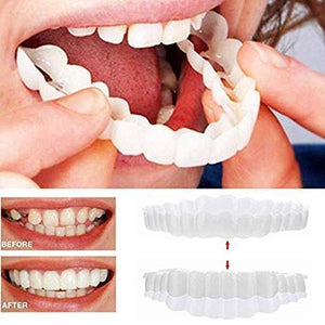 Perfect Smile Snap-On Braces ( Buy 2 Get Extra 10% Off )