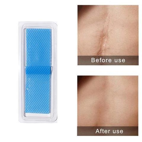 Stretch Marks Scar Removal Sheets ( Buy 2 Get Extra 10% Off )