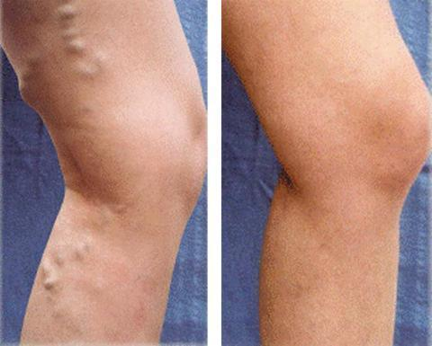Varicose Veins Removal Cream ( Buy 2 Get Extra 10% Off ) TopViralPick