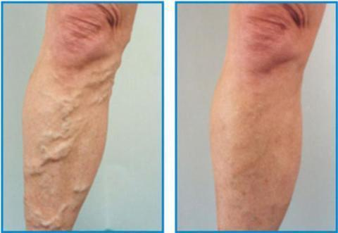 Varicose Veins Removal Cream ( Buy 2 Get Extra 10% Off )