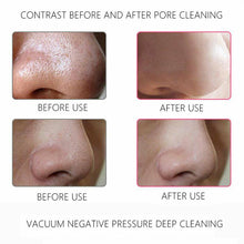 Load image into Gallery viewer, StarBeauty Blackhead Remover Vacuum™