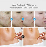 Hylauranic Acid Collagen peptide based whitening, scar removing and anti-aging Cream - [tags] - Authentic Option
