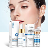 Hylauranic Acid Collagen peptide based whitening, scar removing and anti-aging Cream - scar  remove  peptides  lighten  hylaruanic acid  fade  damage  collagen  brightens  brighten  blemish  blackheads  beautiful  antiaging  anti wrinkle  aging  acne spot remover  acne remover - Authentic Option