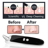 Electric blackhead and Acne remover through Suction - Authentic Option