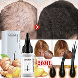 20ml Fast Hair Growth Essence Oil Effective Growth Essence Oils Hair Loss Treatment Help for Growth Hair Care Anti-off Solution