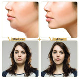 Shapes Face and Removes double Chin. V shape Slimming Face Mask - v shape  slim face  Skin care  skin  remover  face shaper  face shape  face lift  face fat  double chin  correction  care  blemish  beautiful  anti wrinkle - Authentic Option