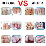 Nail Fungus infection Treatment - [tags] - Authentic Option