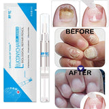 Nail Fungus infection Treatment - Authentic Option