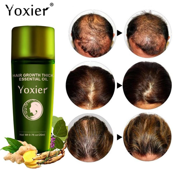 Zingiber officinale  treatment  Tocopheryl acetate  thick  supple  styling  Simmondsia chinensis  shampoo  seed oil  polygonum multiforum  oil  liquid  jojoba  hair loss prevention  hair loss  hair growth  hair care  Hair  growing  Ginger  fast  dense  68 days Herbal Hair Growth Essential Oil