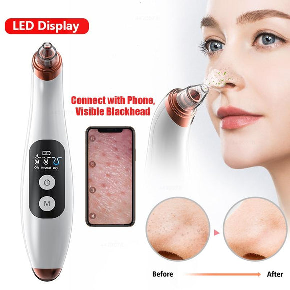 Deep Pore Cleaner Removal through Vacuum Suction - Authentic Option