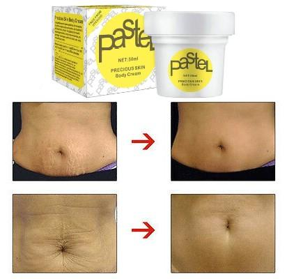 Natural Anti Cellulite Skin Firming Cream