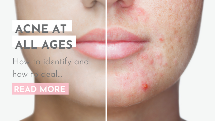 ACNE AT ALL AGES - How to Identify and How to Deal...