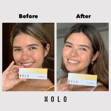 Load image into Gallery viewer, Holo Teeth Whitening Kit - Holo Teeth Whitening