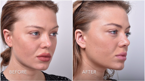 Before And After Using Dr Abels™ Sonic Face Lifter