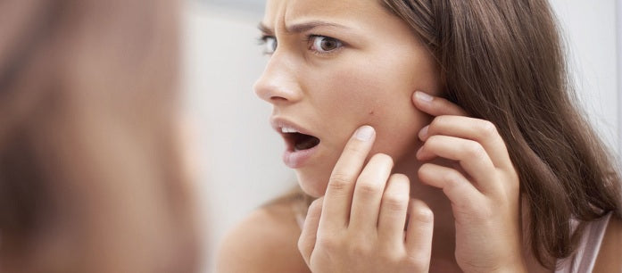 Acne is a problem for a lot of people, but there are natural ways to prevent it. Find out the best supplements to help prevent acne breakout.