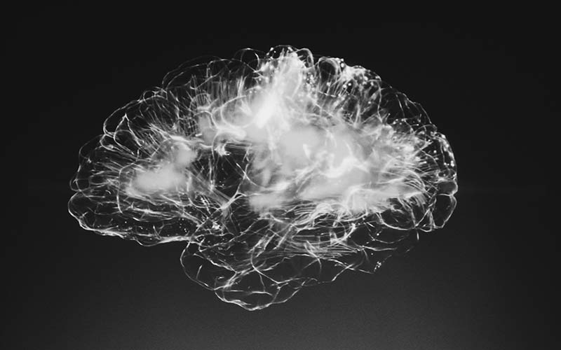 A black and white x-ray image of a brain.