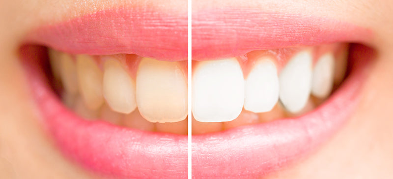 How to Avoid Coffee Stained Teeth – Death Wish Coffee Company