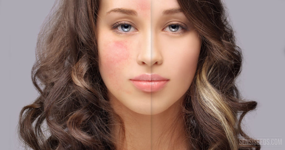 The Benefits of CBD Cream for Rosacea