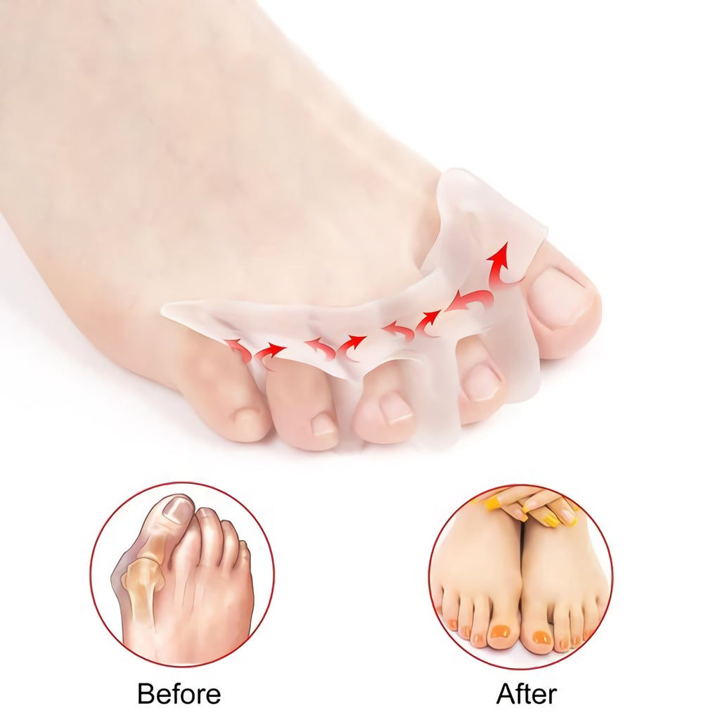 Skywalk™ Silicone Orthopedic Bunion Corrector 2.0
