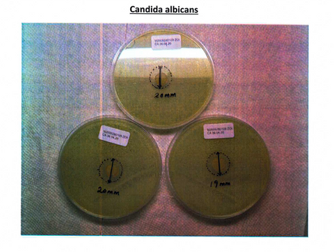 Three Inhibition Zone Ager Plates of Candida Albicans
