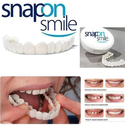 SNAP-ON DENTURES