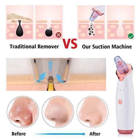 Vacuum Pore Cleanser And Black Head Remover Blackhead Remover And Vacuum Facial Pore Pimple & Acne Cleaner White / Buy 1 - Shopptique